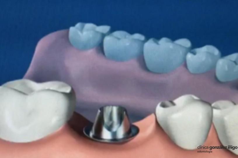 _implantes